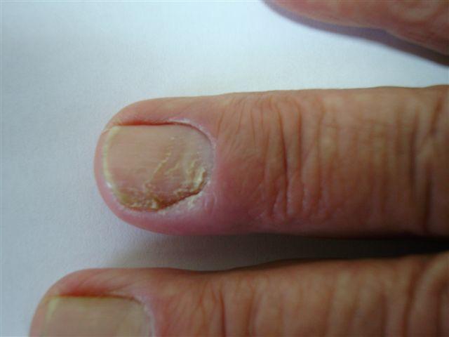 Paronychia: acute and chronic (nail disease, felon/whitlow