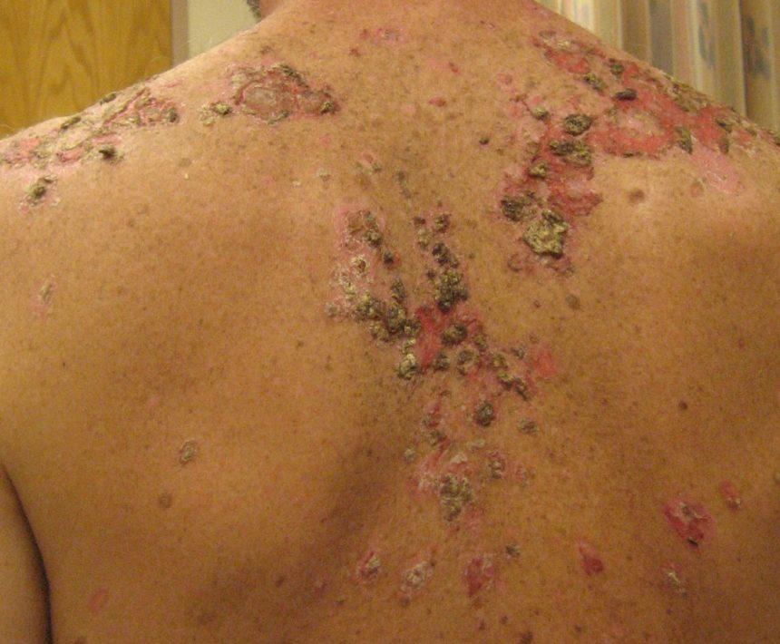 Pemphigus Vulgaris - Dermatology Advisor