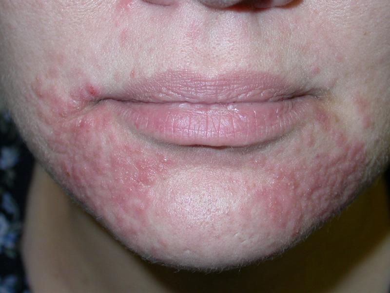 Periorificial Dermatitis Perioral Dermatitis Dermatology Advisor