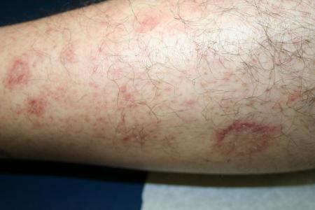 Pityriasis rosea - Dermatology Advisor