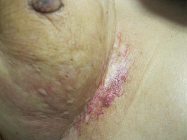 Radiation Dermatitis Radiodermatitis Radiation Epidermitis