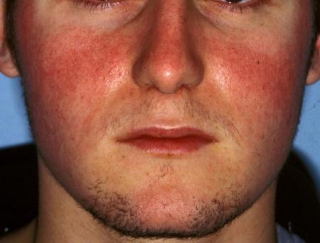 Rosacea - Dermatology Advisor