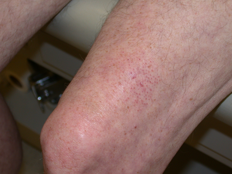 mycosis of the skin kenőcs pikkelysömörhöz)