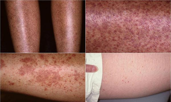Sjögren's Syndrome - Dermatology Advisor