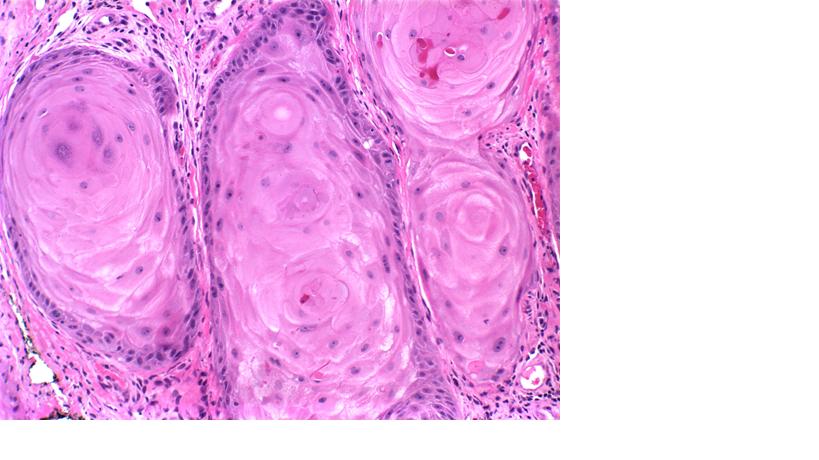 Squamous Cell Carcinoma of the Skin - Dermatology Advisor
