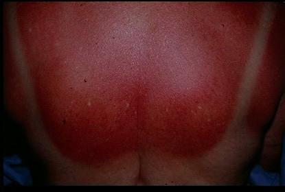 Sunburn (solar erythema) - Dermatology Advisor