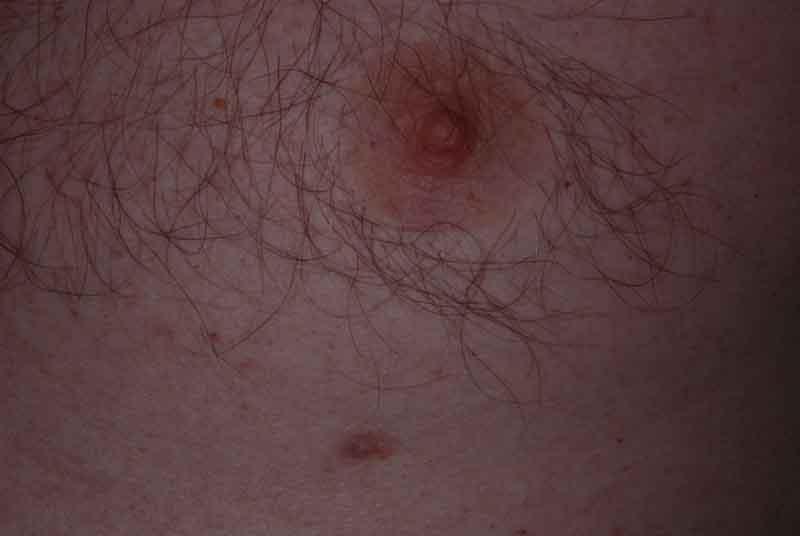 Supernumerary nipple (polythelia, accessory nipple, third