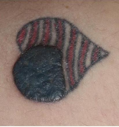 Inflammatory Tattoo Reaction - Dermatology Advisor
