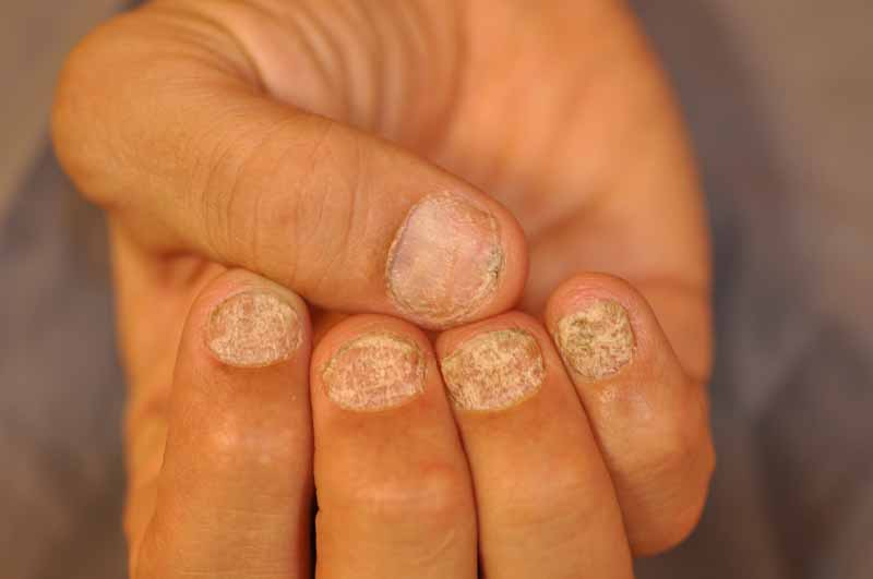 Trachyonychia (Rough Nails) - Dermatology Advisor