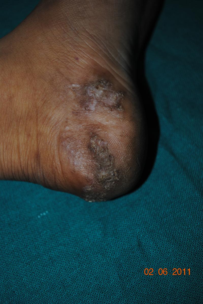 Tuberculosis  |Skin Tuberculosis
