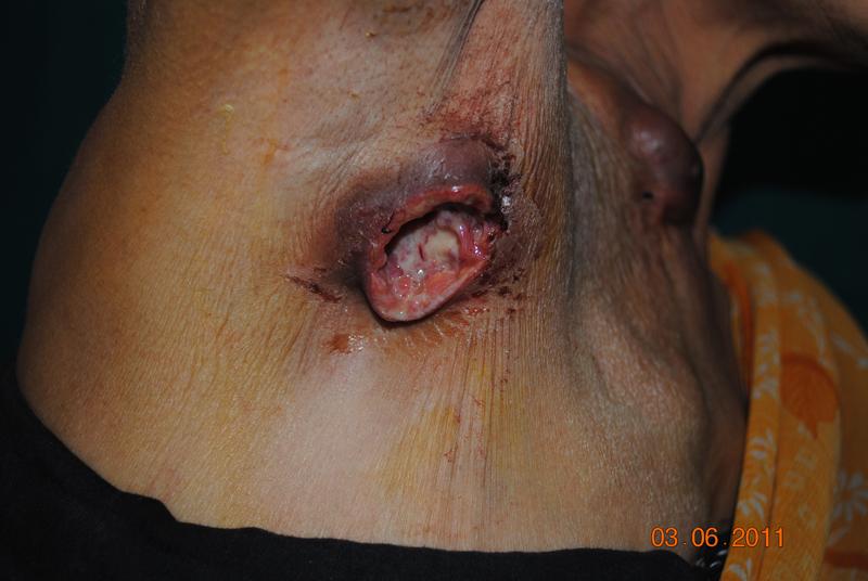 Tuberculosis, Cutaneous - Dermatology Advisor