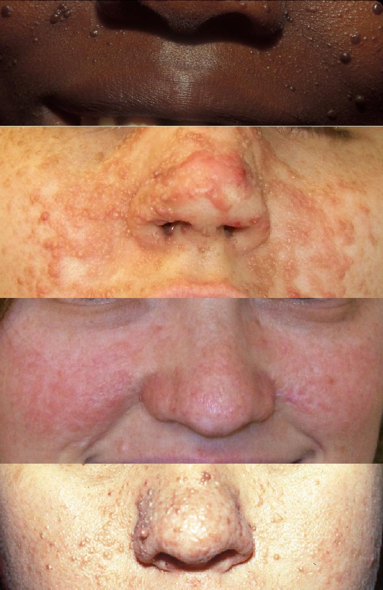 Tuberous Sclerosis Complex (Bourneville Disease, Bourneville