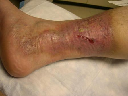 Ulcers, Leg (venous stasis ulcers, arterial ulcers, diabetic