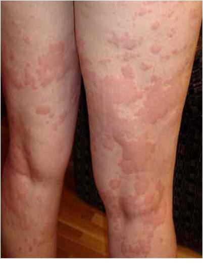 Urticaria: Acute and Chronic Spontaneous Urticaria