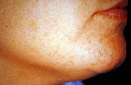 Verrucae (common warts, verruca vulgaris, flat warts