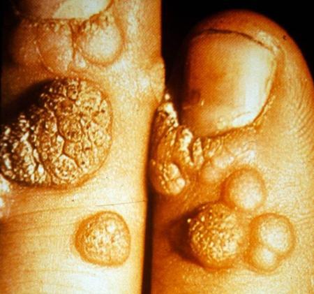 pikkelyes papilloma vs verruca vulgaris