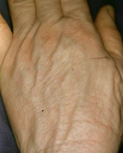 Vitiligo Dermatology Advisor