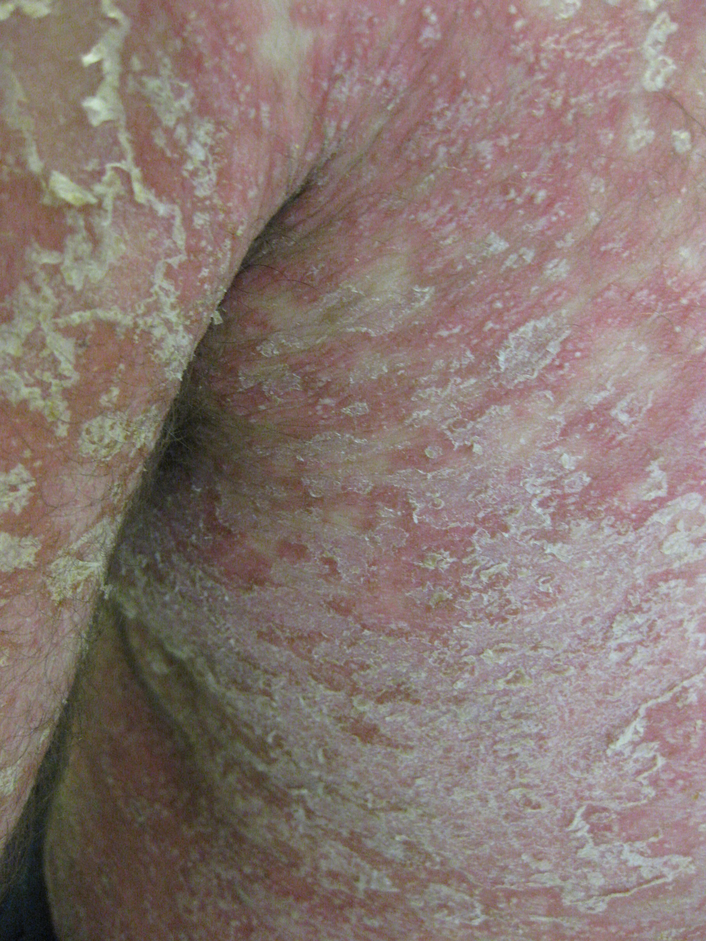 erythrodermic psoriasis)