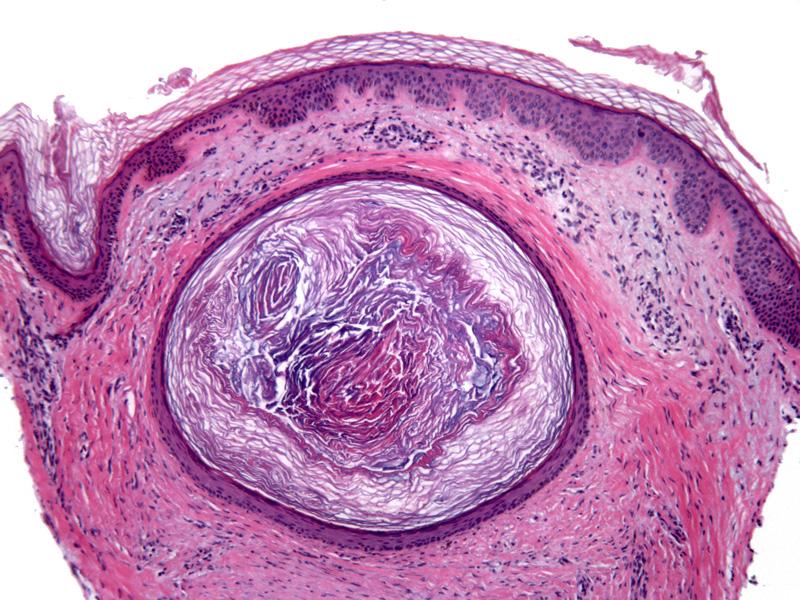 Epidermal (infundibular) cysts - Dermatology Advisor