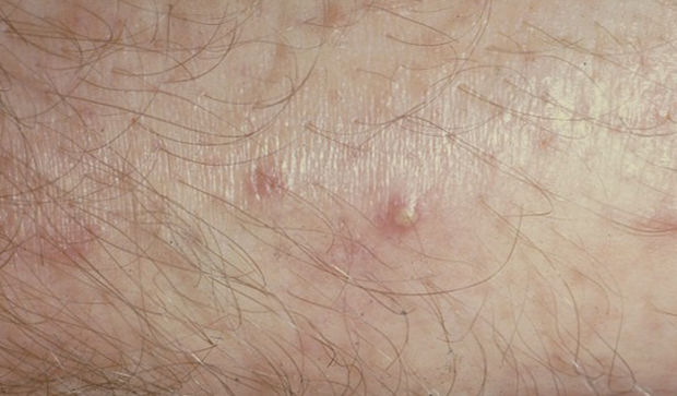 Hot tub folliculitis (Pseudomonas Folliculitis, Hot tub rash