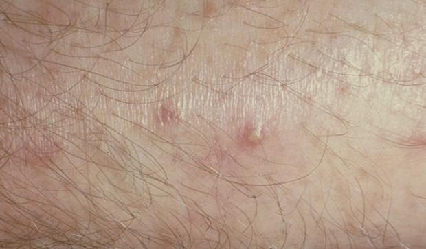 Hot tub folliculitis (Pseudomonas Folliculitis, Hot tub rash
