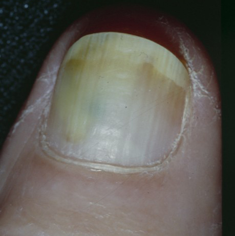 Green Nail Syndrome (GNS, Pseudomonas nail infection