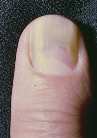Green Nail Syndrome (GNS, Pseudomonas nail infection, chloronychia