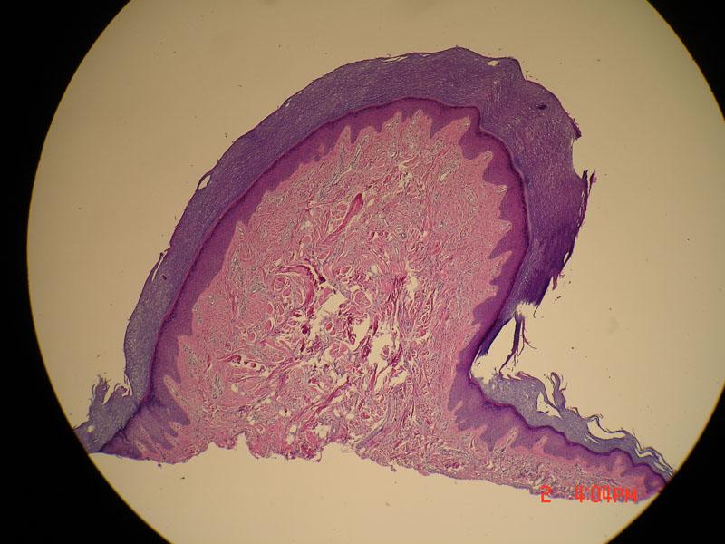 Fibrokeratooma