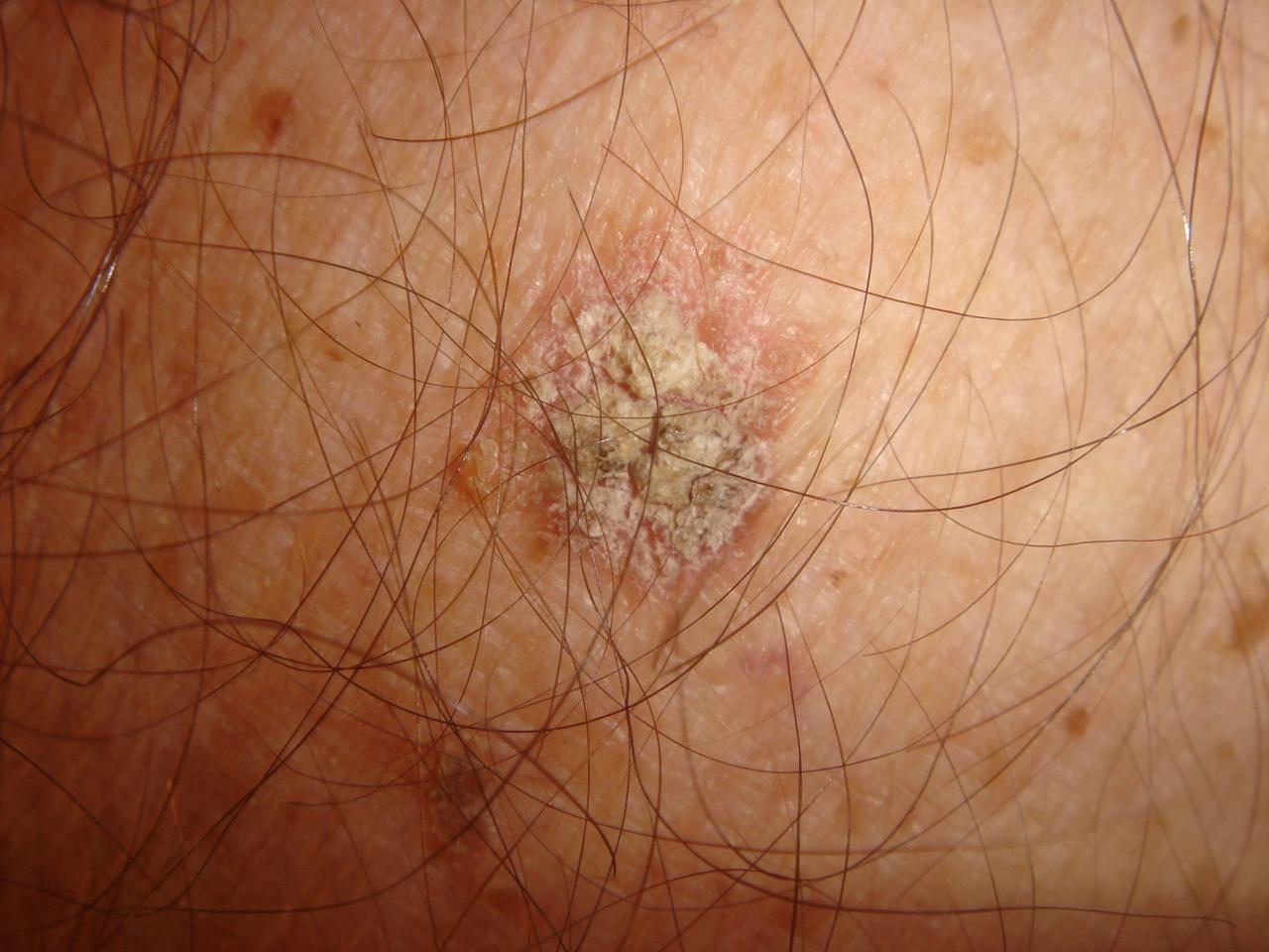 Actinic Keratosis (Solar Keratosis, Sun Spots) - Dermatology