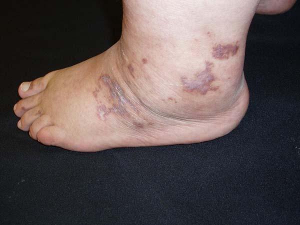 Antiphospholipid antibody syndrome - Dermatology Advisor