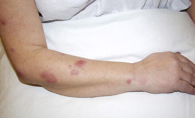 Coccidioidomycosis (Valley fever) - Dermatology Advisor