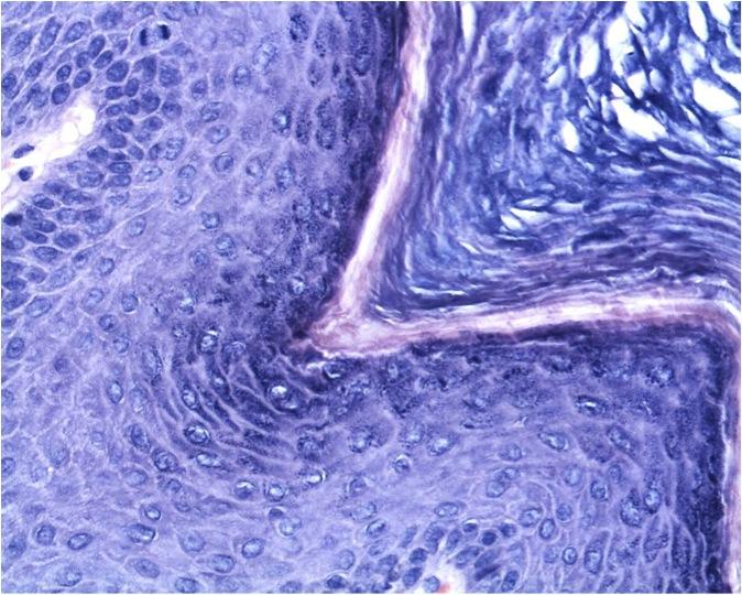 Condyloma acuminatum (Genital warts) - Dermatology Advisor