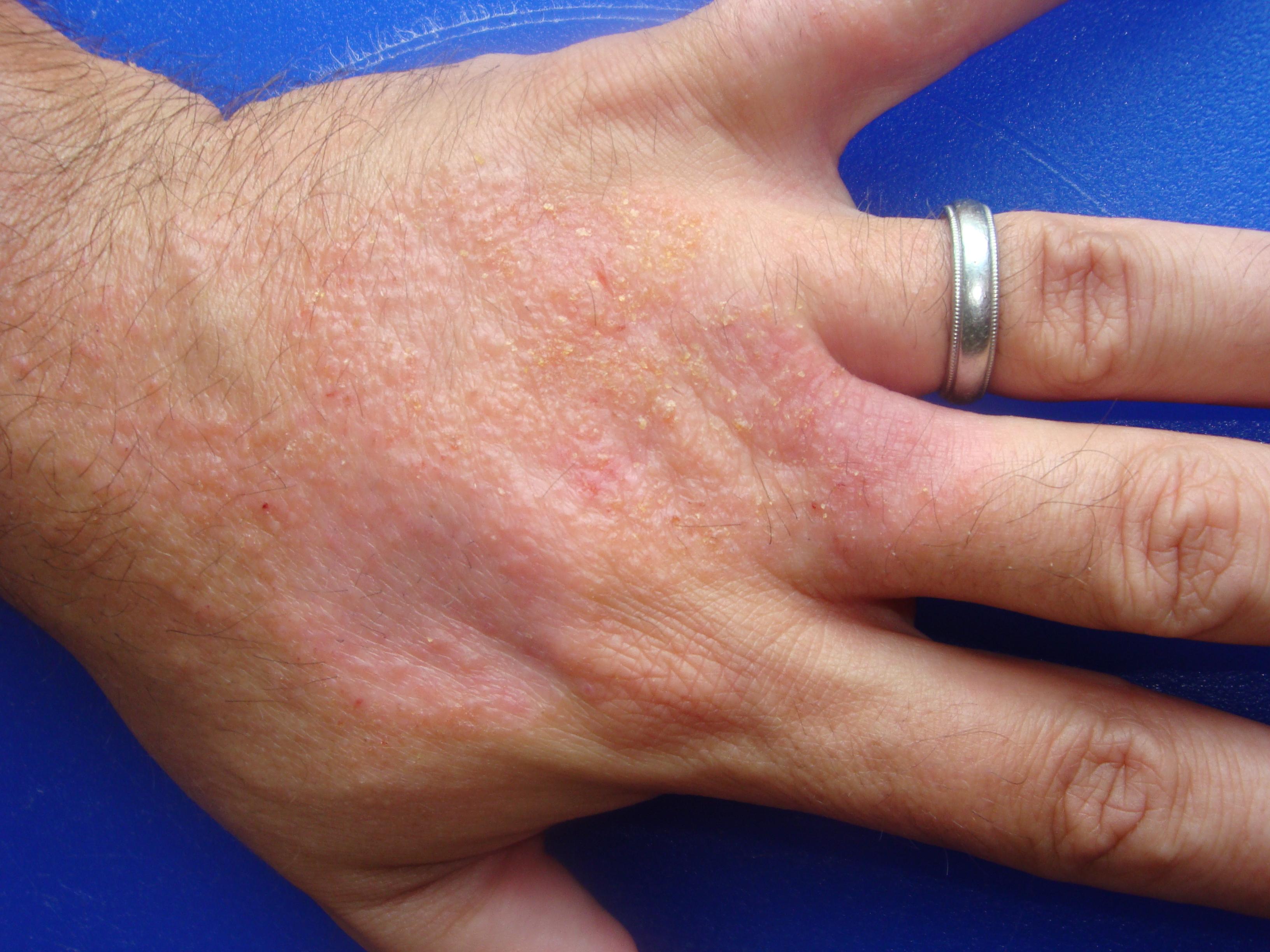 Occupational Contact Dermatitis (dermatitis occupational
