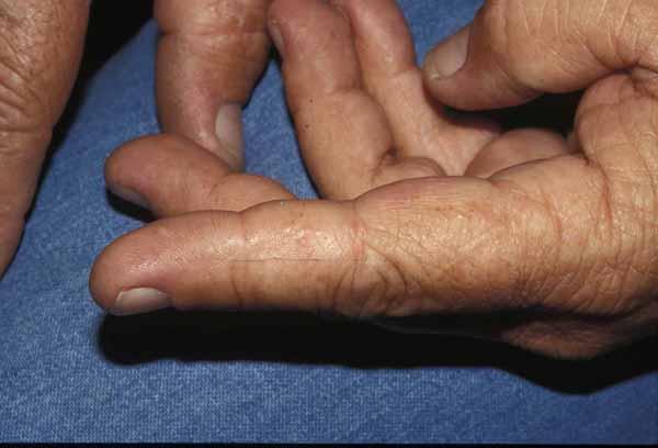 Dyshidrotic Dermatitis - Dermatology Advisor