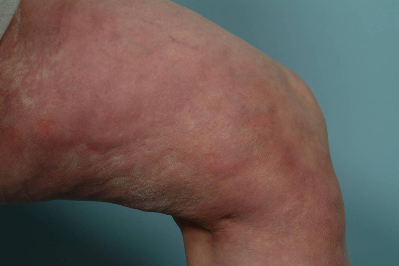 Eosinophilic Fasciitis Shulman Disease Diffuse Fasciitis With