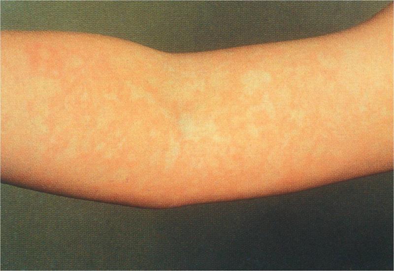 Erythema Infectiousum (Fifth Disease, Slapped Cheek ...
