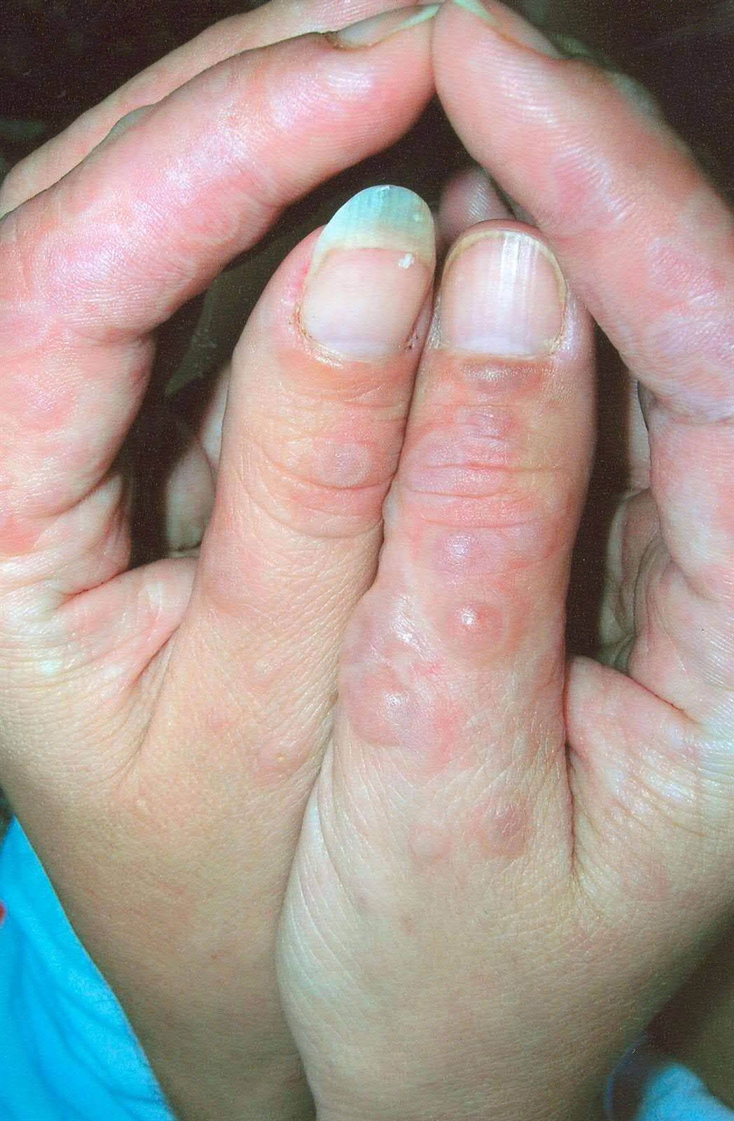 Erythema Multiforme Dermatology Advisor