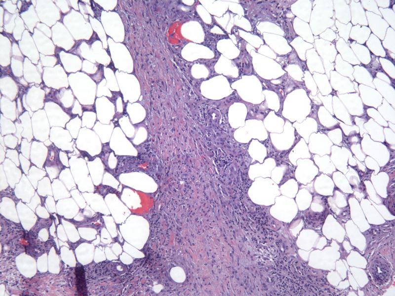 Erythema nodosum - Dermatology Advisor