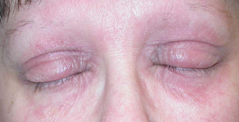 b0b6e1efcb4 Atopic dermatitis of eyelids. Chronic lichenified plaques with eyelid  thickening and hair loss. Photographs are courtesy of Dr Alfons Krol, Dr  Eric Simpson ...