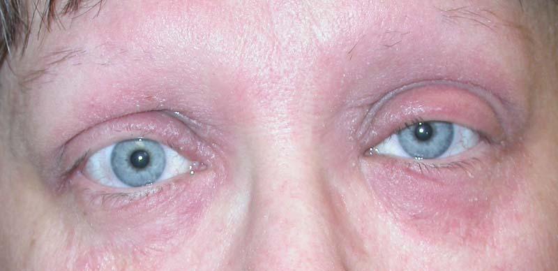 Eyelid Dermatitis (xeroderma of the eyelids, eczema of the eyelids