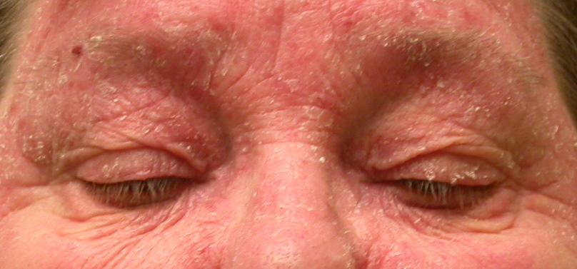 Eyelid Dermatitis (xeroderma of the eyelids, eczema of the