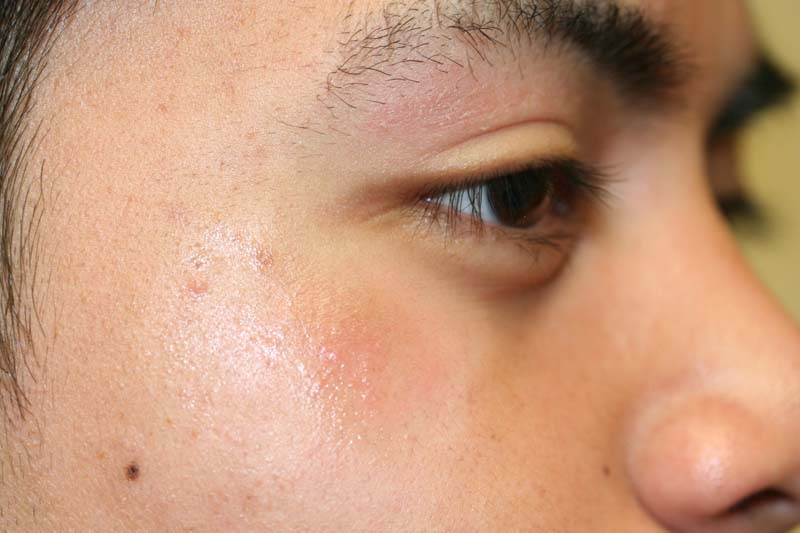 Eyelid Dermatitis Xeroderma Of The Eyelids Eczema Of The