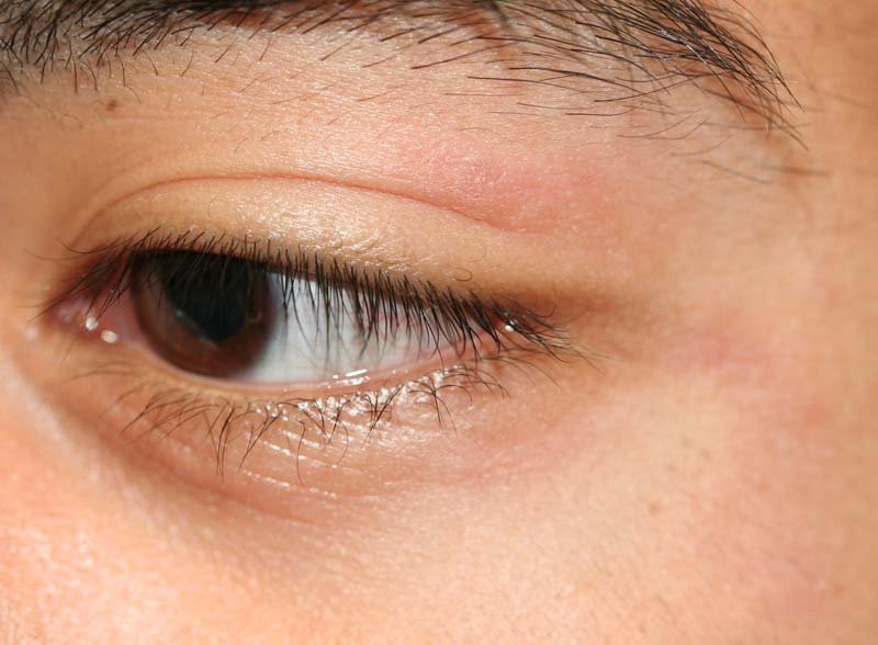 Eyelid Dermatitis (xeroderma of the eyelids, eczema of the