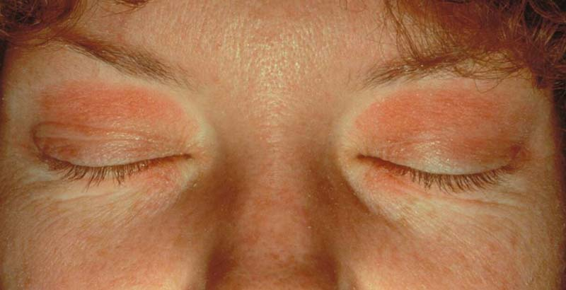 Kết quả hình ảnh cho ACD dermatitis treatment