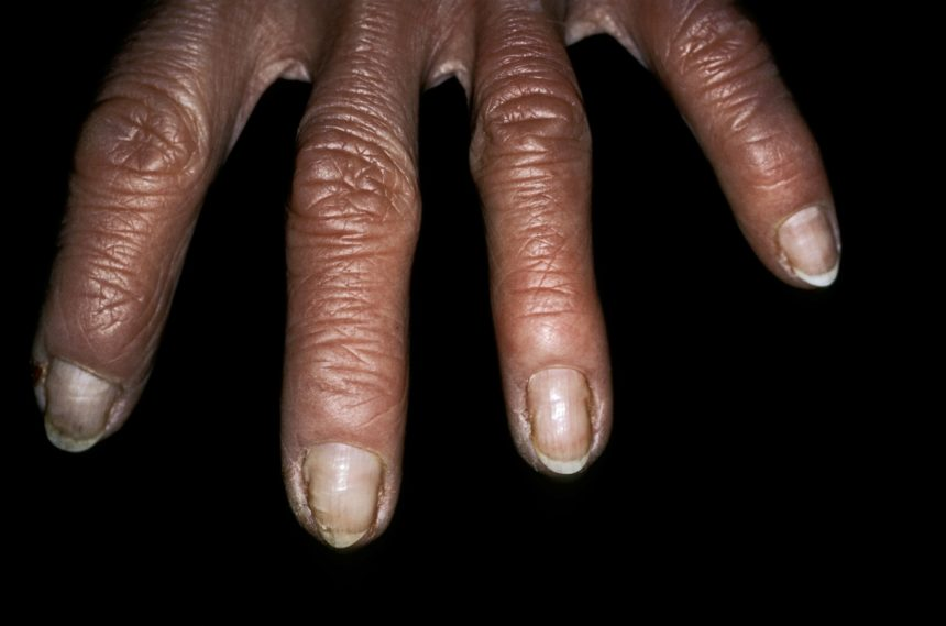 Close-up of psoriatic arthritis of the hand
