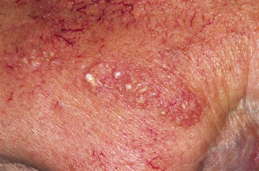 Close-up of actinic keratosis