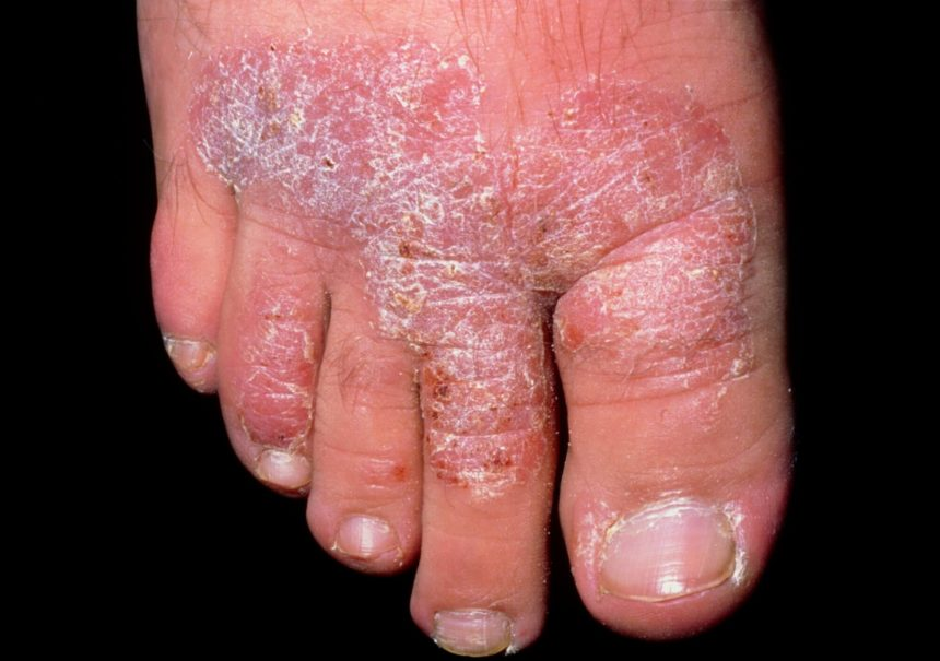 chronic foot plaque psoriasis