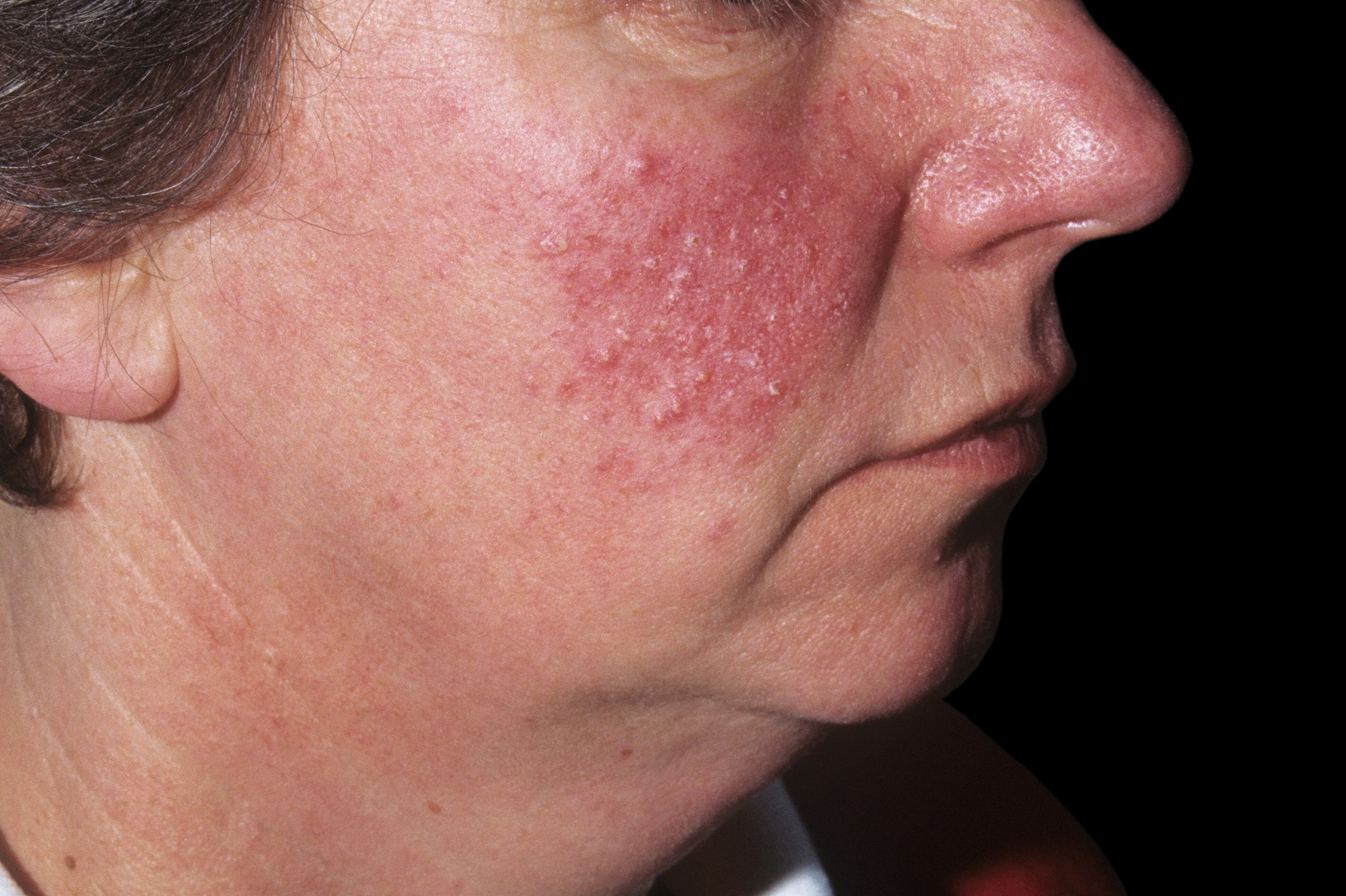 Dating someone with rosacea