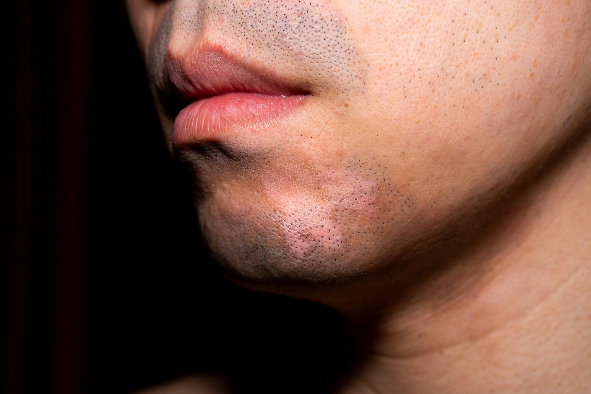 Twice Daily 2 Tofacitinib Cream Plus Uvb Improves Facial Vitiligo Symptoms Dermatology Advisor