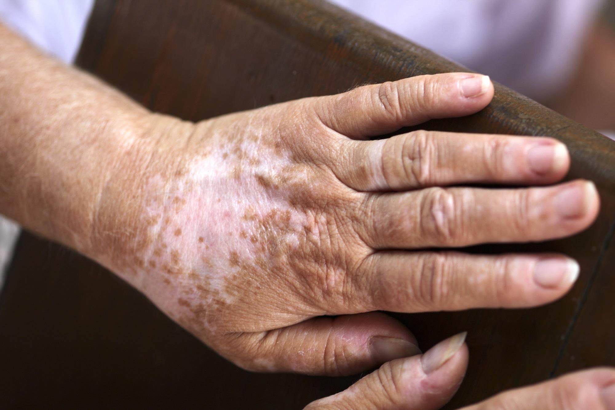 Immunomodulators Other Emerging Therapies Show Promise For Vitiligo Dermatology Advisor